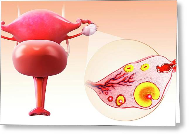 Female Reproductive System Greeting Card by Pixologicstudio/science Photo Library