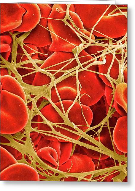 Blood Clot Greeting Card by Steve Gschmeissner