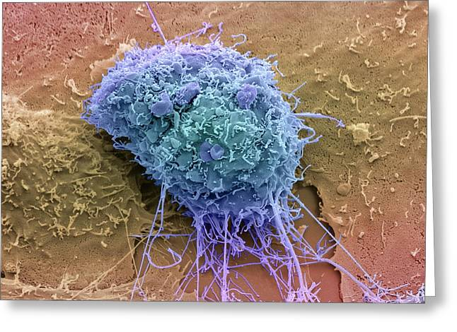 Cervical Cancer Cell Greeting Card