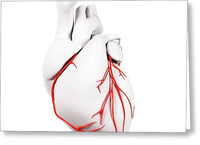 Coronary Arteries Greeting Card by Sciepro/science Photo Library