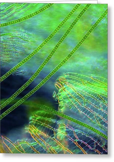 Desmids On Sphagnum Moss Greeting Card