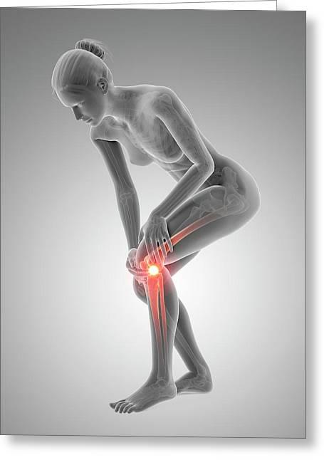Human Knee Pain Greeting Card