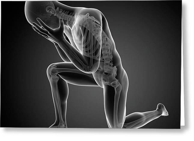 Person Kneeling Greeting Card by Sebastian Kaulitzki