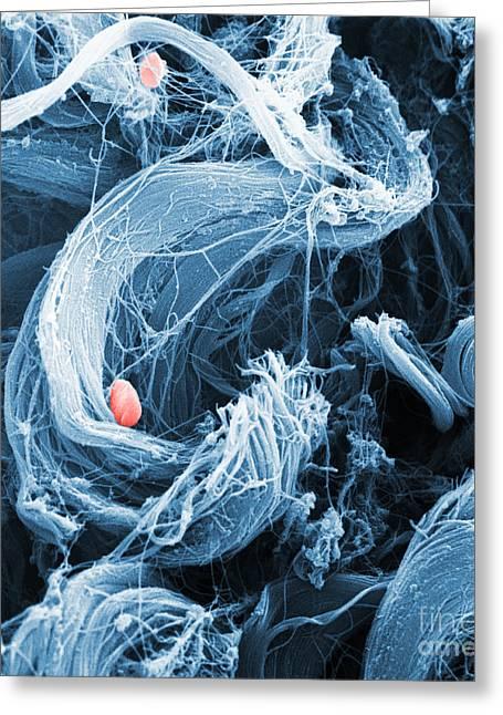 Collagen Sem Greeting Card by David M. Phillips