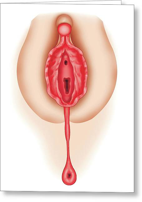 Development Of External Genitalia Greeting Card by Asklepios Medical Atlas