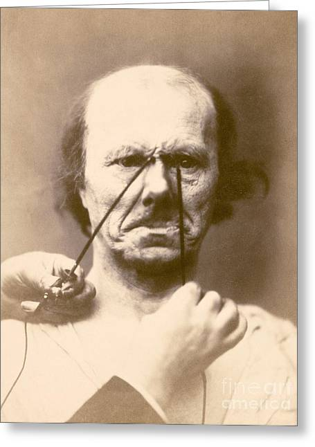 Duchenne's Physiognomy Studies, 1860s Greeting Card