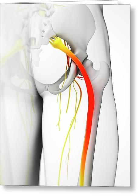 Human Sciatic Nerve Greeting Card by Sebastian Kaulitzki