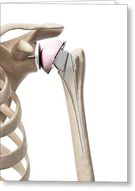 Human Shoulder Replacement Greeting Card by Sebastian Kaulitzki