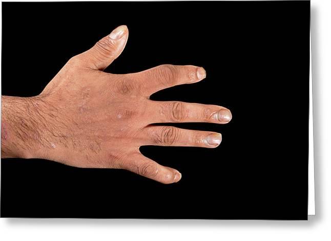 Psoriatic Arthritis Greeting Card