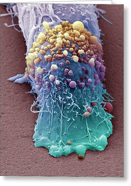 Skin Cancer Cell Greeting Card