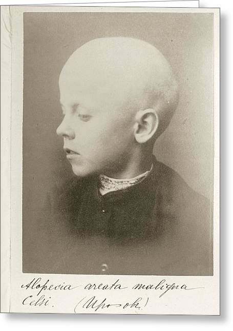 9 Year Old Boy With Alopecia Greeting Card by National Library Of Medicine