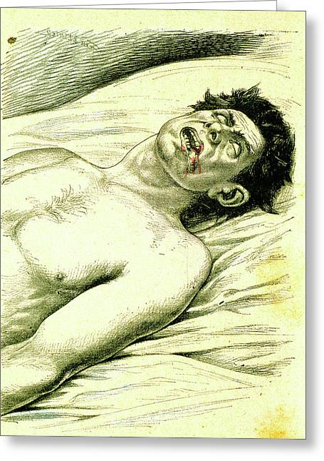 A Subject Suffering From Epilepsy Greeting Card by Universal History Archive/uig