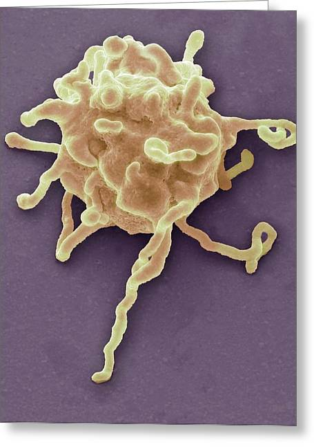 Activated Platelet Greeting Card by Steve Gschmeissner