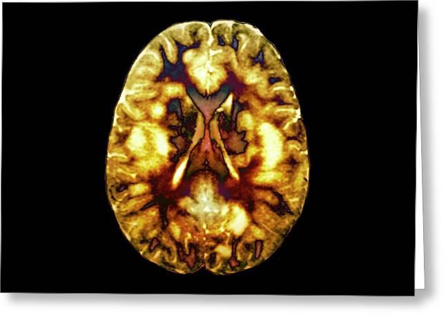 Acute Disseminated Encephalomyelitis Greeting Card by Zephyr