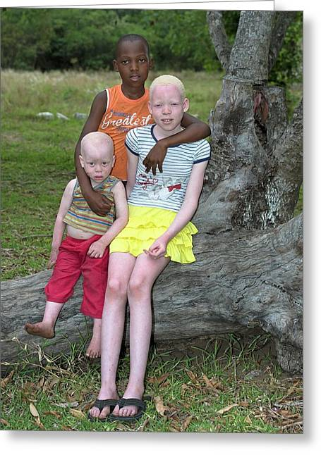 Albino Siblings With Their Black Brother Greeting Card by Tony Camacho
