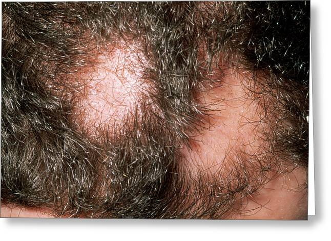 Alopecia Areata Greeting Card by Dr P. Marazzi/science Photo Library