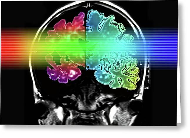 Alzheimer's Brain Greeting Card