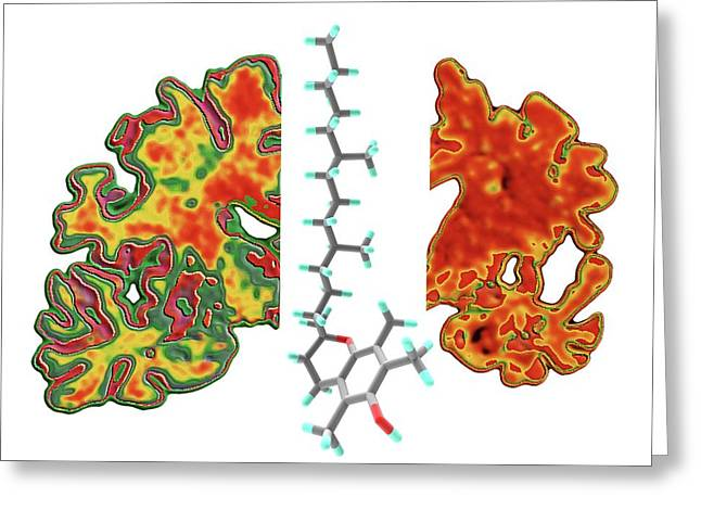 Alzheimer's Brain And Vitamin E Molecule Greeting Card by Alfred Pasieka