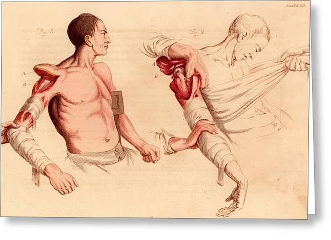 Amputation Of The Arm At The Shoulder Greeting Card by Universal History Archive/uig