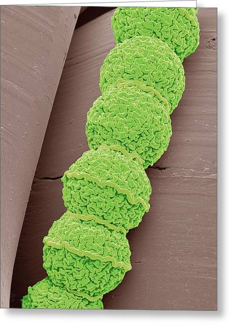 Anabaena Algae Greeting Card by Steve Gschmeissner