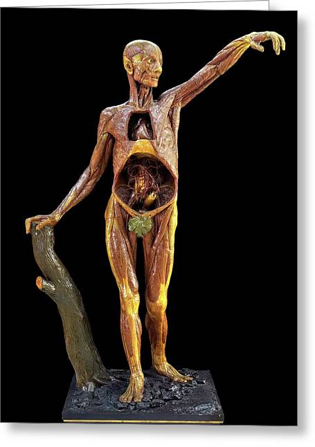 Anatomical Model Greeting Card by Javier Trueba/msf