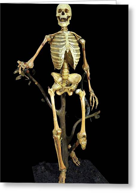 Anatomical Skeleton Model Greeting Card by Javier Trueba/msf