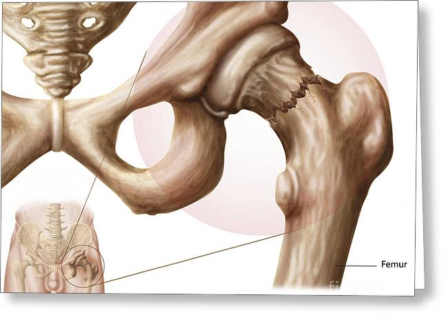 Anatomy Of Hip Fracture Greeting Card by Stocktrek Images