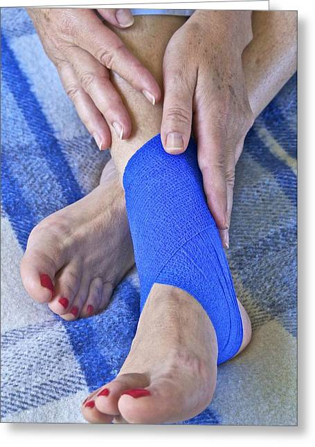 Ankle Injury Greeting Card by Science Photo Library
