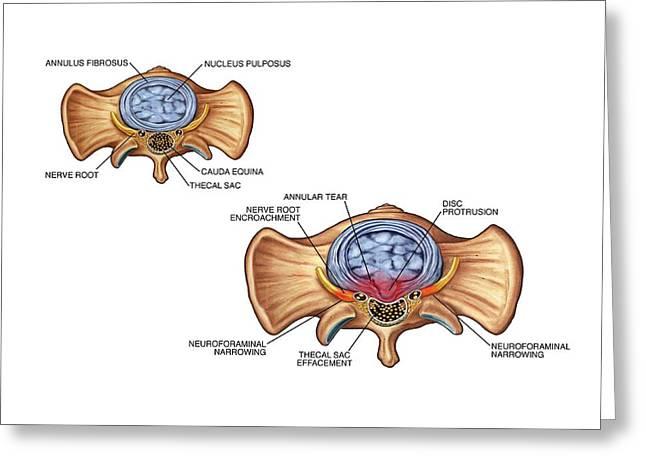 Annular Tear Of Intervertebral Disc Greeting Card by John T. Alesi