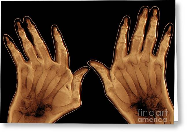 Arthritic Hands, X-ray Greeting Card by Zephyr