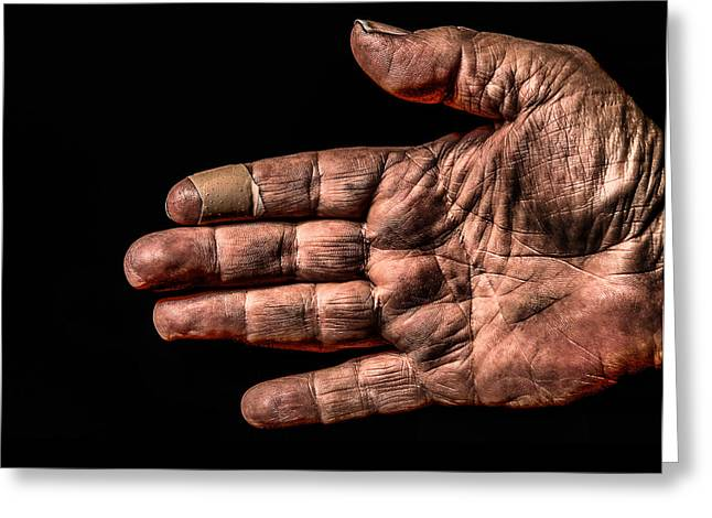 Arthritis  Greeting Card by Ray Congrove