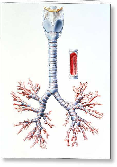 Artwork Of Trachea And Bronchi Of The Human Lungs Greeting Card by Bo Veisland, Mi&i/science Photo Library