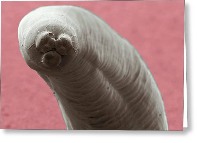 Ascaris Roundworm Greeting Card by Thierry Berrod, Mona Lisa Production