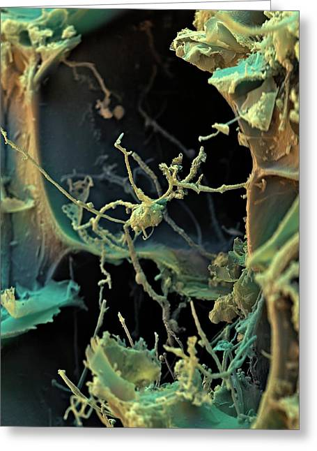 Azolla Plant Surface Greeting Card