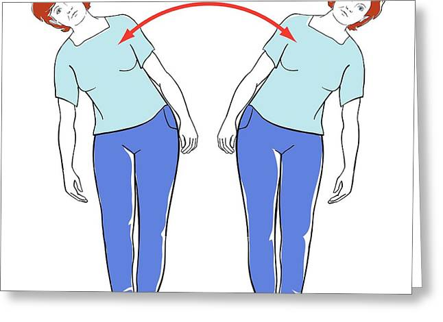 Back Exercises Greeting Card