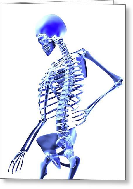 Back Pain Greeting Card