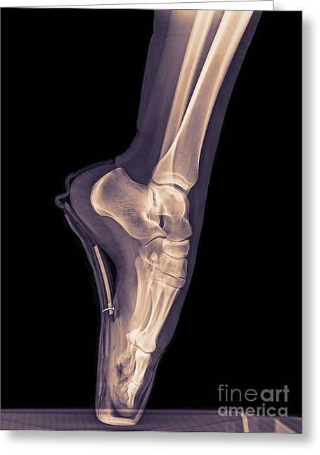 Ballet Dancer X-ray 3 Greeting Card