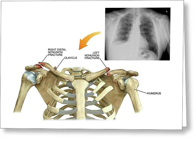 Bilateral Collar Bone Fractures Greeting Card by John T. Alesi