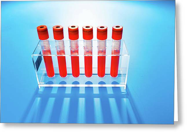 Blood Samples In Tubes Greeting Card by Wladimir Bulgar
