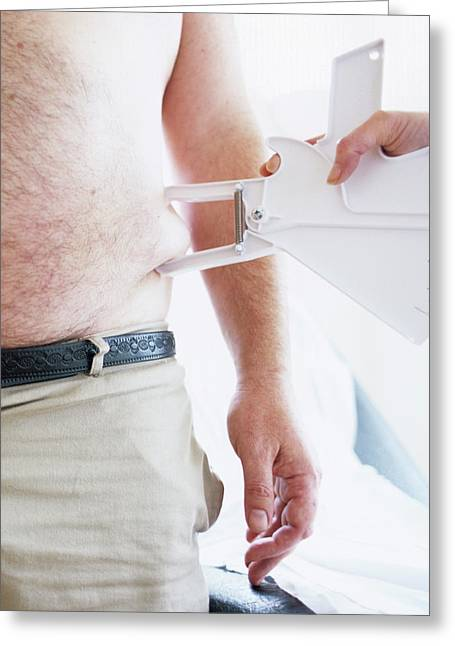 Body Fat Assessment Greeting Card by Ian Hooton/science Photo Library