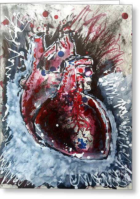 Body - Expose Your Heart Greeting Card
