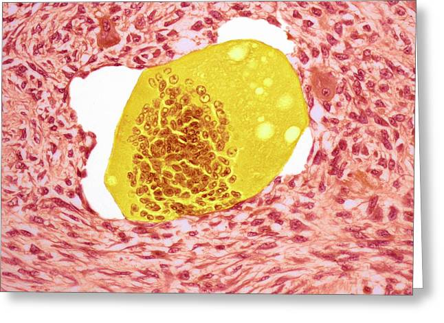 Bone Tumour Greeting Card by Steve Gschmeissner