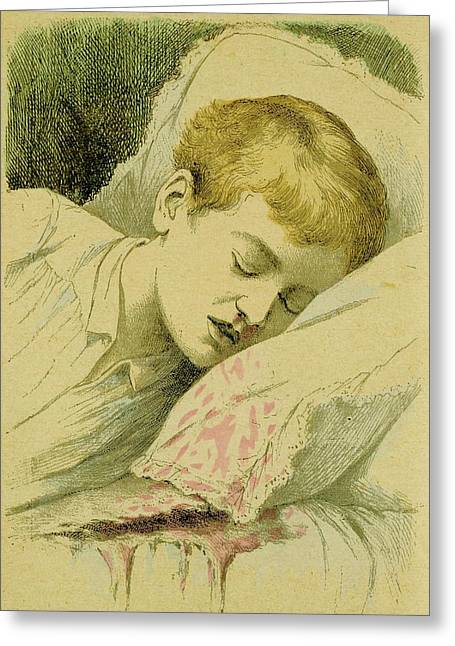 Boy With Haemophilia Greeting Card by Universal History Archive/uig
