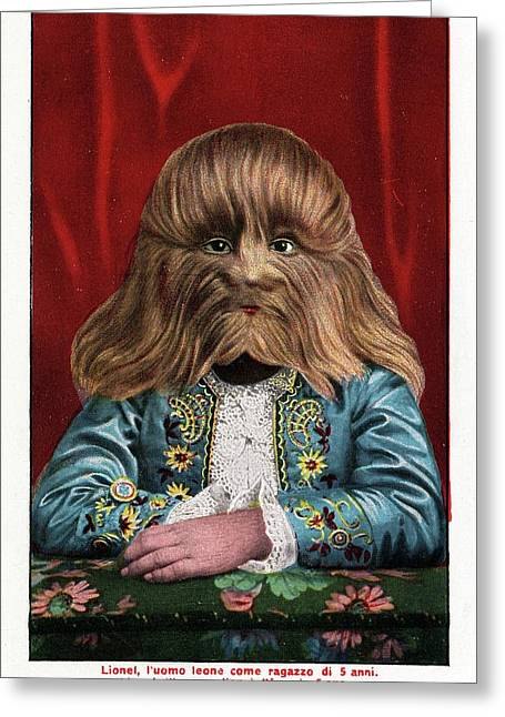 Boy With Hypertrichosis Greeting Card by American Philosophical Society