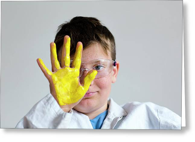Boy With Yellow Paint On Hand Greeting Card by Gombert, Sigrid