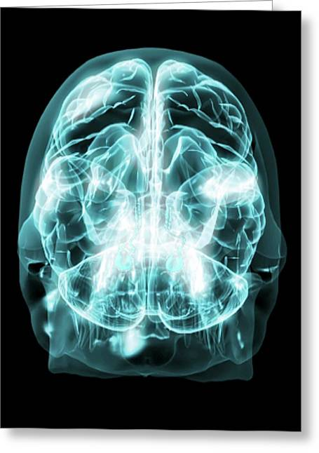 Brain Anatomy Greeting Card by Thierry Berrod, Mona Lisa Production/ Science Photo Library