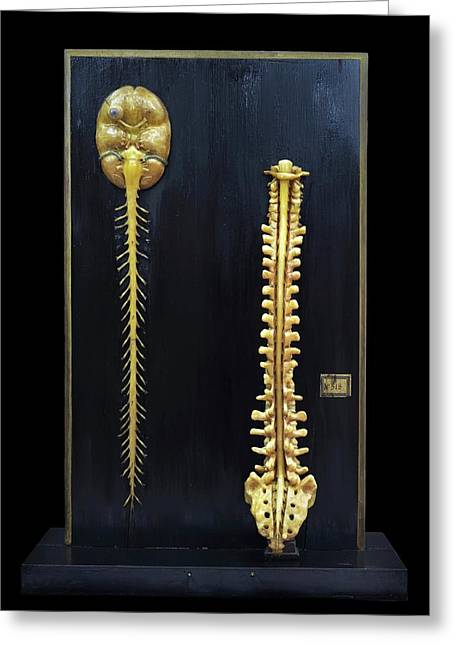 Brain And Spinal Cord Model Greeting Card