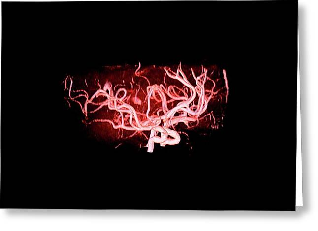 Brain Arteries Greeting Card by Anders Persson, Cmiv