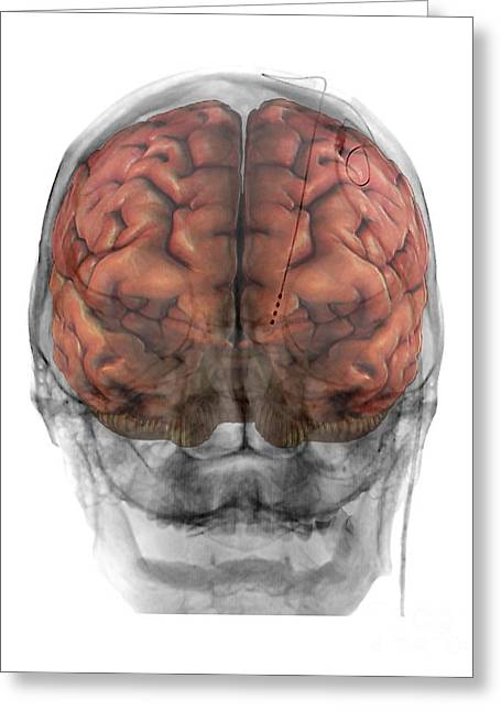 Brain Implants For Parkinson's Disease Greeting Card
