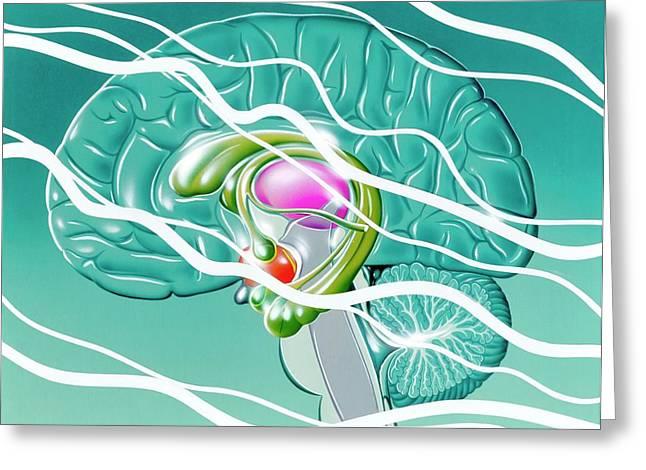 Brain In Epilepsy Greeting Card by John Bavosi
